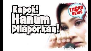 Dokter Air Mata Hanum Rais Dilaporkan Ke Pb Dokter Gigi Karena Melanggar Etika Profesi