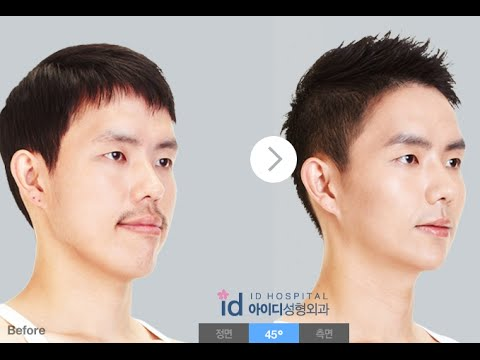 Underbite Jaw Surgery_ Protruded mouth (5. Interview post orthognathic surgery)
