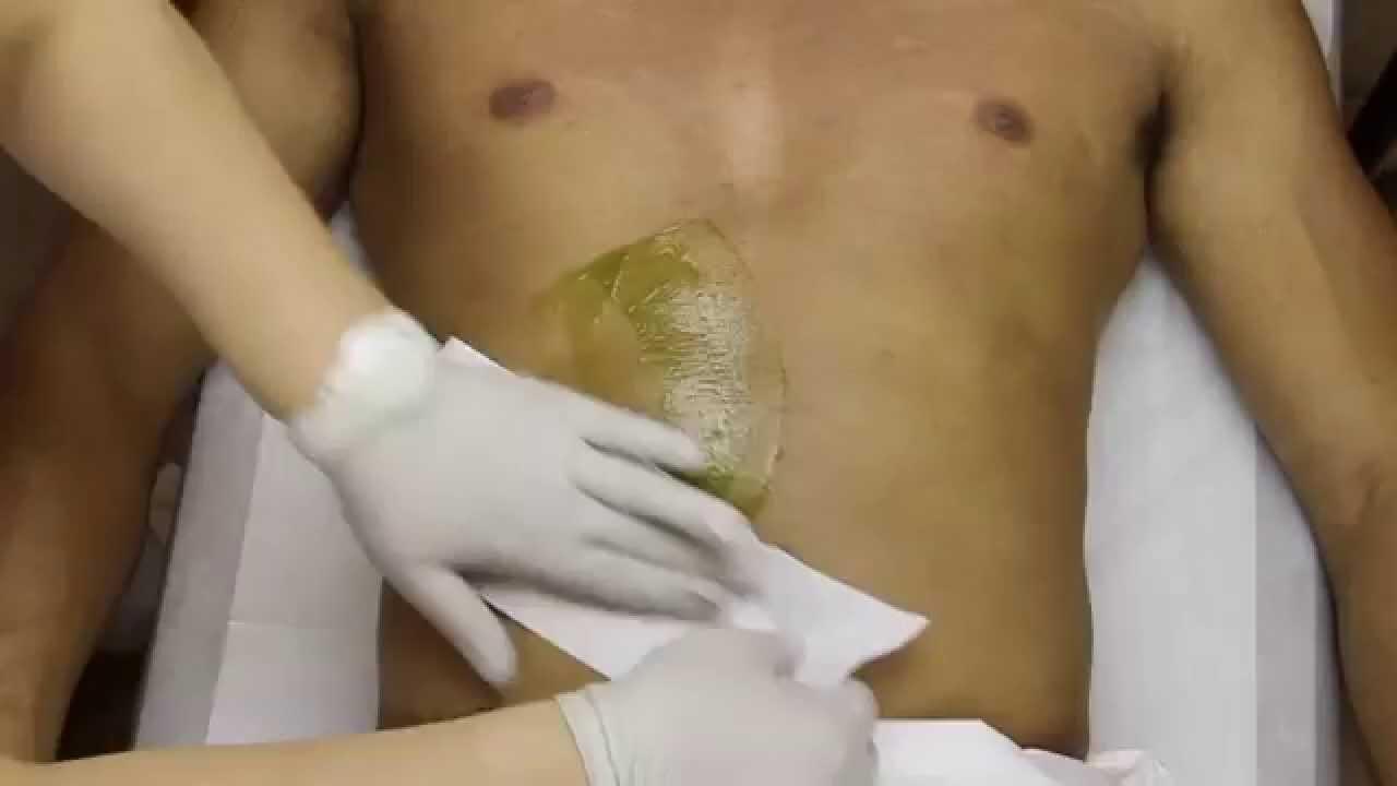 Butt rash adult remedy
