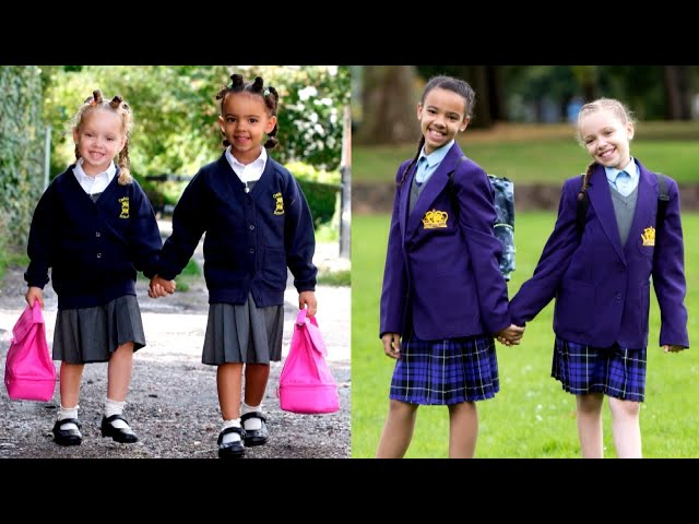 Meet the 11-Year-Old Twins With 2 Different Skin Tones