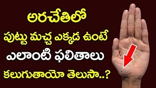 Unknown Facts About Moles on Palm | Mole on the Palm to Know the Secret of Luck  | Palmistry  YOYOTV
