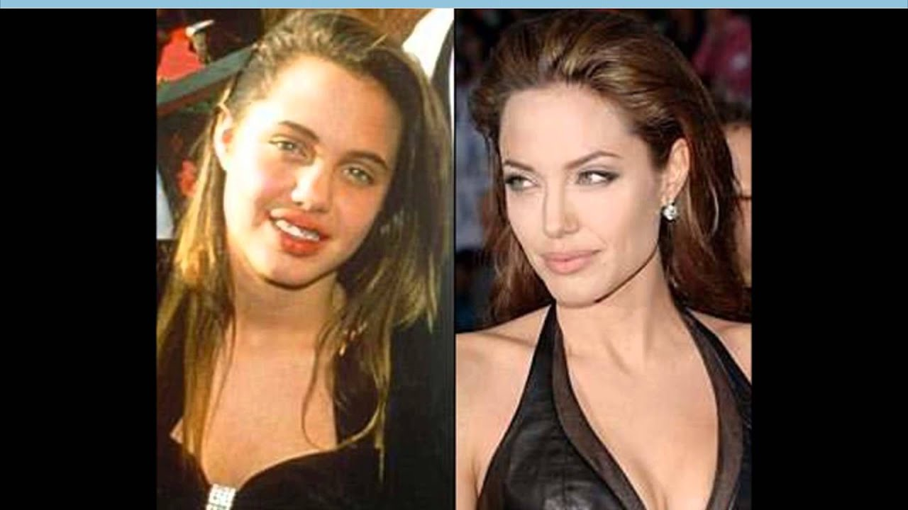 55 shocking images of celebrities before and after photoshop lady - 18 Best Nose Jobs Before And After Images On Pinterest Nose Jobs Celebrity Plastic Surgery And Before After