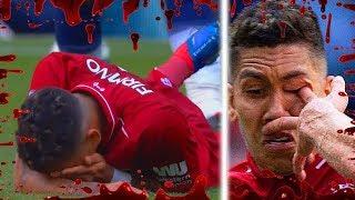 Brutal Tackles/Injuries In Football ● 2018