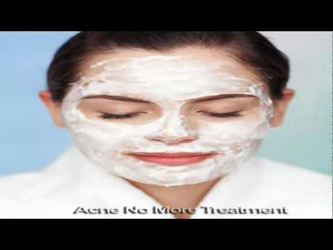 Sulfur Treatment to Cure Acne Forever Most Within Just A Few Weeks