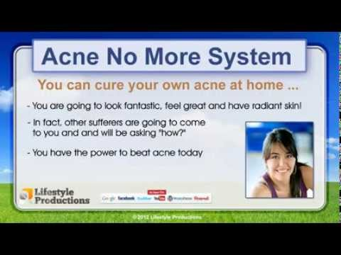 Buy Acne No More - Natural Home Remedies For Acne Scars REVIEWS