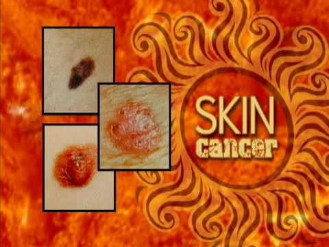 Skin Cancer and Kids