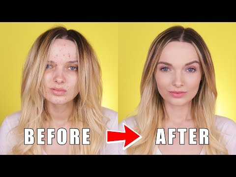 ACNE COVERAGE BACK TO SCHOOL MAKEUP TUTORIAL! // MyPaleSkin
