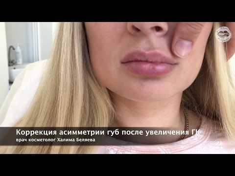 Асимметрия губ после увеличения губ ГК