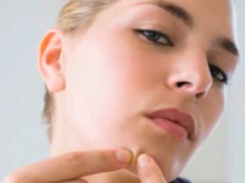 How to Get Rid of Pimples Naturally Video