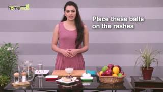 Remedies to Treat Measles - Part 2