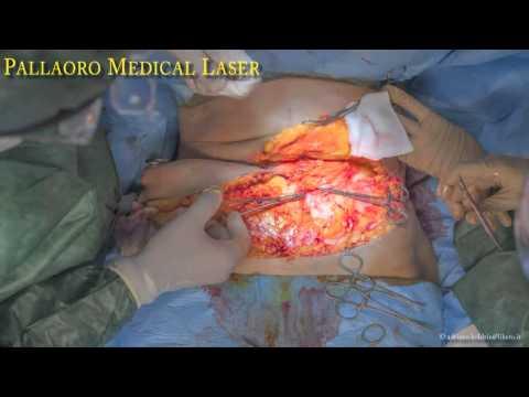 Chirurgia Estetica-Addominoplastica o Lifting Addominale Video Timelapse