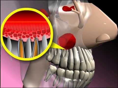 0 - Що робити, якщо болять лобові пазухи носа причини і лікування