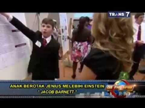 Anak Berotak Jenius Melebihi Einstein (7 Januari 2014)