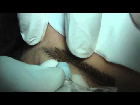 Vitamina C em luta contra pigmentação em uma cara