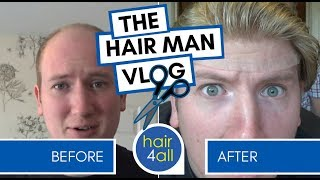 How to Create a Hair System Template   Non-Surgical Hair Replacement System for Men/Women