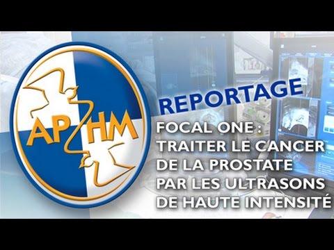 Traite vidéo de la prostate chez l'adulte