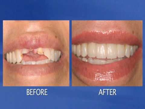 Cosmetic Dentist Los Angeles- Dental Implants, Sedation Dentistry, Veneers, Crowns, Invisalign.