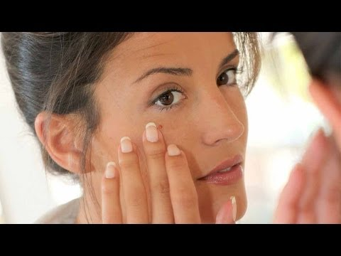 Adult Acne: Why you get it & How to Fight it!