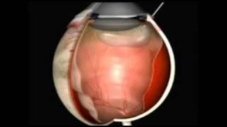 4   Descolamento de retina
