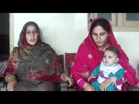 Rawalakot Patient Operated in KIRF UK Free Plastic Surgery Camp