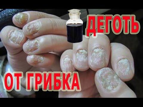 Как использовать березовый деготь при грибке ногтей