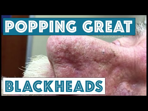 Popping GREAT blackheads after Mohs skin cancer surgery For medical education- NSFE.