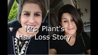 Mrs. Plant's Hair Loss Story [Androgenic Alopecia]