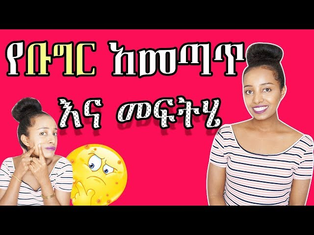 Acne? what and how to treat it - Ethiopian beauty