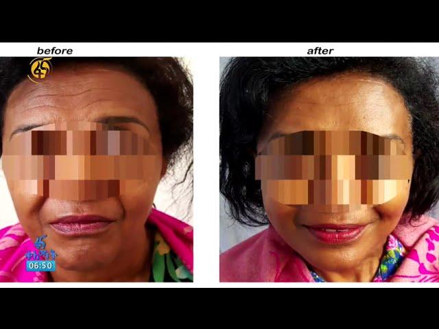 Fana Television | Plastic Surgery In Ethiopia