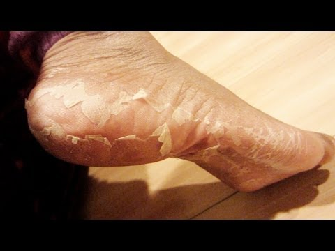 My Foot Transformation   Eliminate Crusty Feet