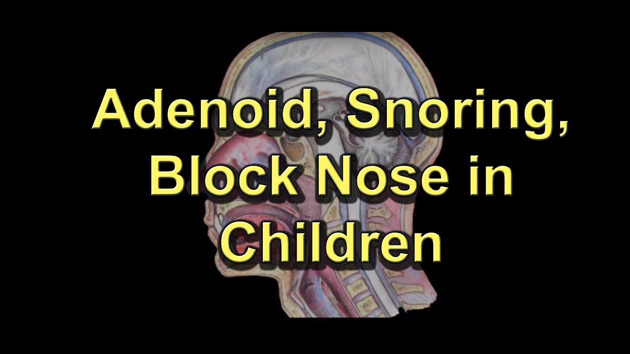 Adenoiditis Adenoid Surgery Snoring Block Nose Runny