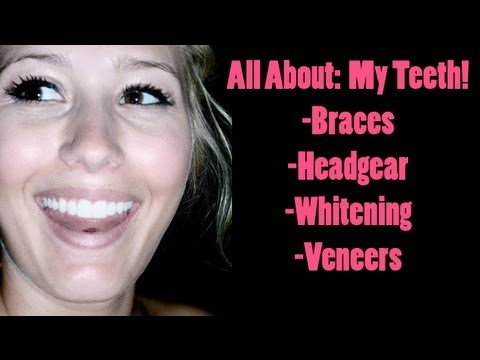 All About: My Teeth! (Braces, Headgear, Whitening and Veneers)