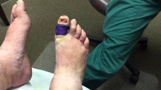 Toenail removal surgery