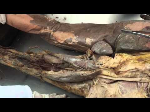qasr alainy Dr Redha lower limb anatomy 2