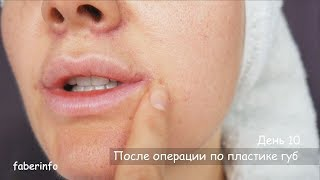Моя ПЛАСТИКА ГУБ. Хейлоплатика (уголки губ, булхорн, мышцы ДАО)