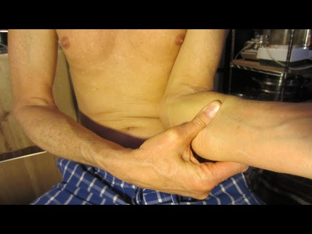 Massage for Carpal Tunnel Syndrome - Stop Arm & Wrist Pain Fast!