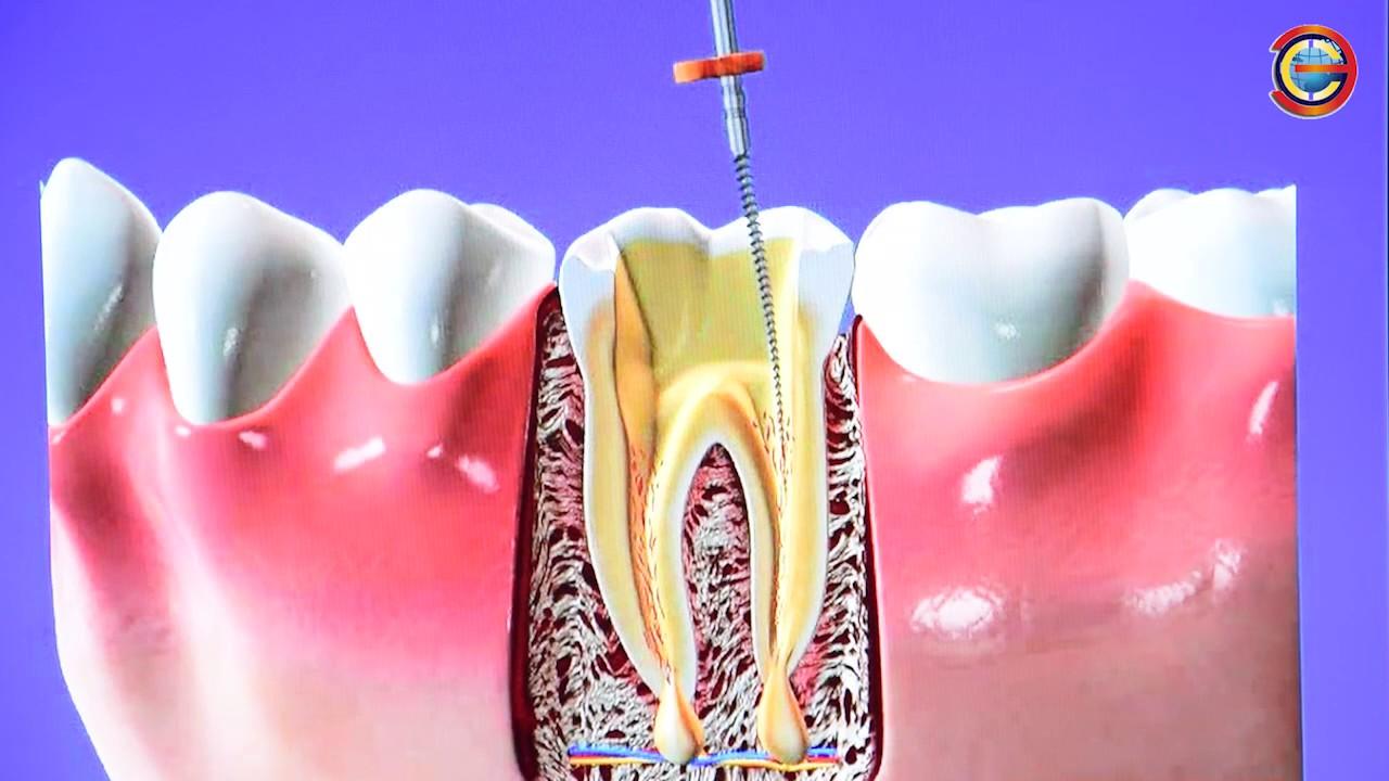 Как лучше сделать зуб если его нет 65