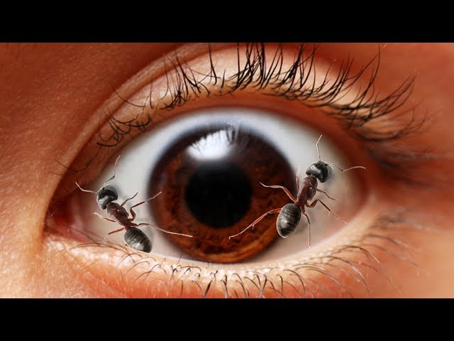 Ethiopia: 60 Ants Taken Out Of An 11 year old school Girl's EYE