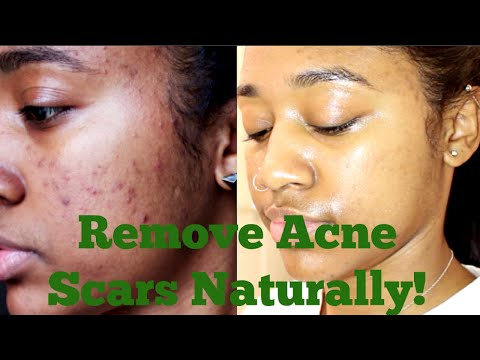 How to: Remove My Acne Scars Naturally  Essential Oils. Derma Roller + More!