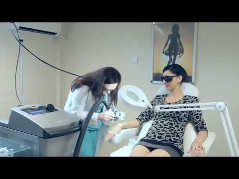 Лазерная эпиляция волос александритовым лазером