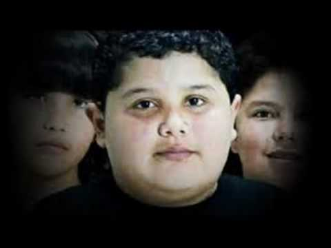 Obesity Epidemic in America--Childhood Obesity Tripled last Two Decades