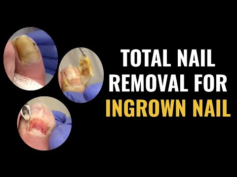 Dr. Pelto Total Nail Removal For Ingrown Toenail