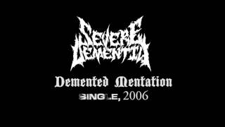 Watch Severe Dementia Demented Mentation video