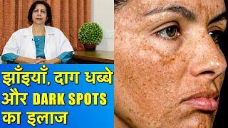 झाँइयाँ, Dark Spots और दाग धब्बों का इलाज || Hyperpigmentation Treatment
