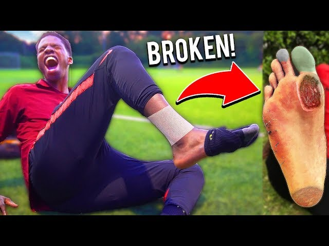 This Football Team BROKE MY FOOT In This Soccer Match INJURY