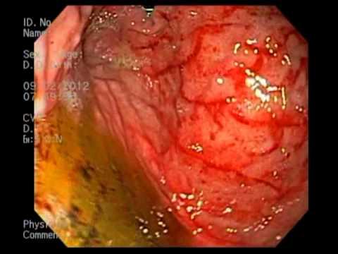 gastritis y sus sintomas