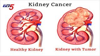 Causes, Symptoms And Treatment For Kidney Cancer   Health File