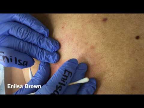 Christian's Acne Back Treatment Part 2