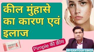 Keel muhase treatment in hindi | कील मुहासे हटाने की क्रीम | pimple treatment cream | acne treatment