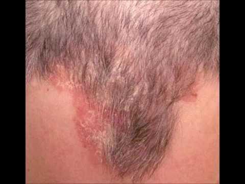 Венерический грибок у мужчин лечение